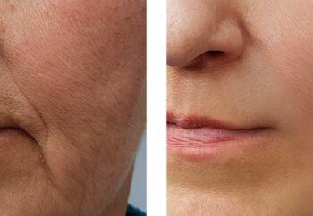 Novedades tratamientos estéticos arrugas. MSaban Dermatología y Clínica estética