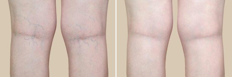 Tratamientos eliminacion variculas en Barcelona. MSaban Dermatología. Dermatólogos y Clínica Estética