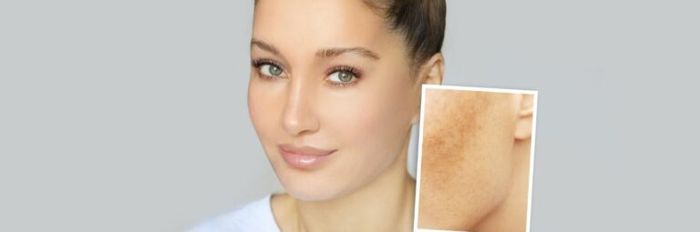 Tratamientos para eliminar las manchas en la piel. MSaban Dermatología. Dermatólogos y Clínica estética en Barcelona