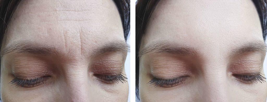 Tratamientos arrugas con botox
