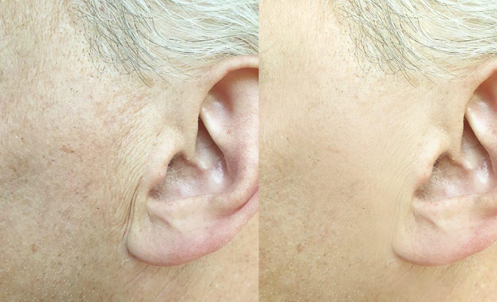 Tratamiento para la eliminación de arrugas