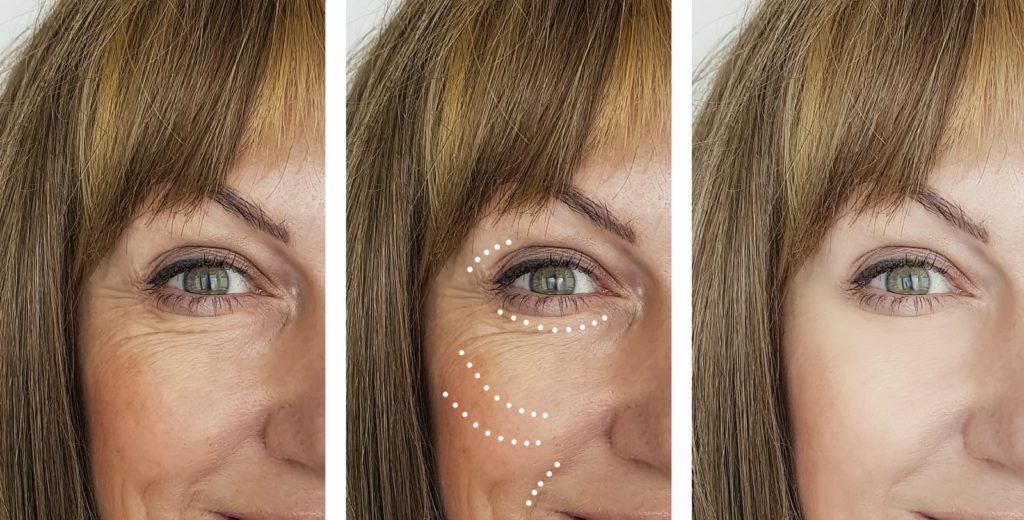 Tratamiento luminosidad piel